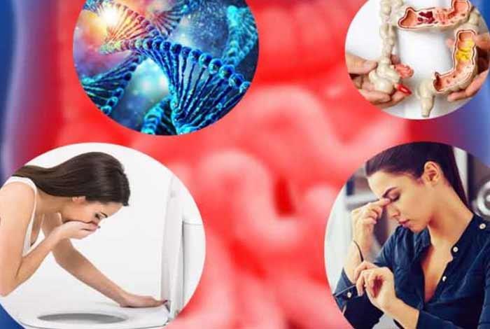 risk factors of irritable bowel syndrome