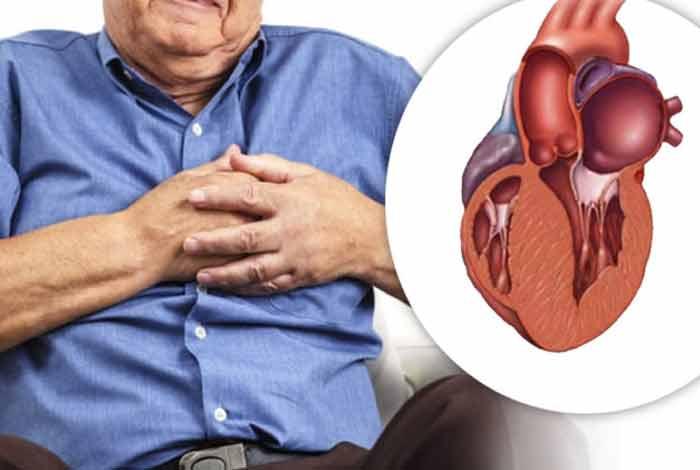 non obstructive coronary artery disease