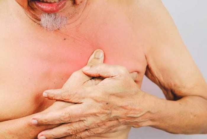 symptoms of breast cancer in men