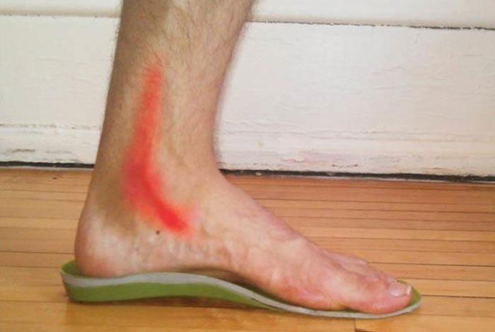 posterior tibial tendinitis
