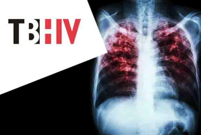 tuberculosis world's deadliest infection alongside aids
