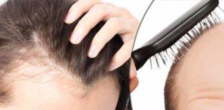 Alopecia Types Symptoms Causes Treatment