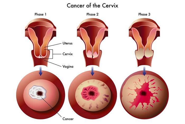 Grading of Cervical Cancer