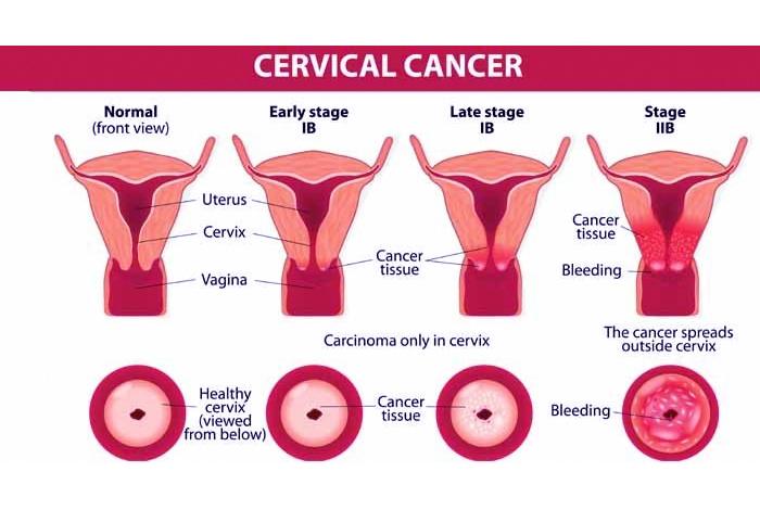 Stages of Cervical Cancer