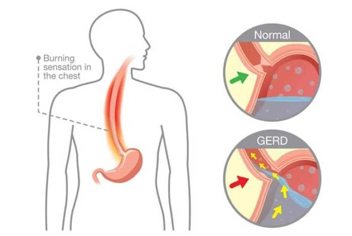 causes of gerd