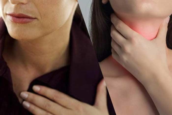 symptoms of gerd