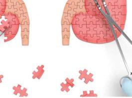 end stage kidney disease a transplant alarm