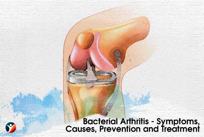 Bacterial Arthritis