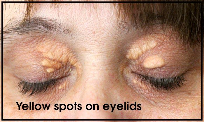 Yellow spots on eyelids